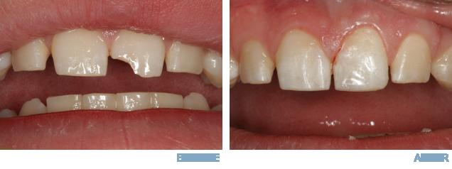 Savannah-GA-Dentist-2